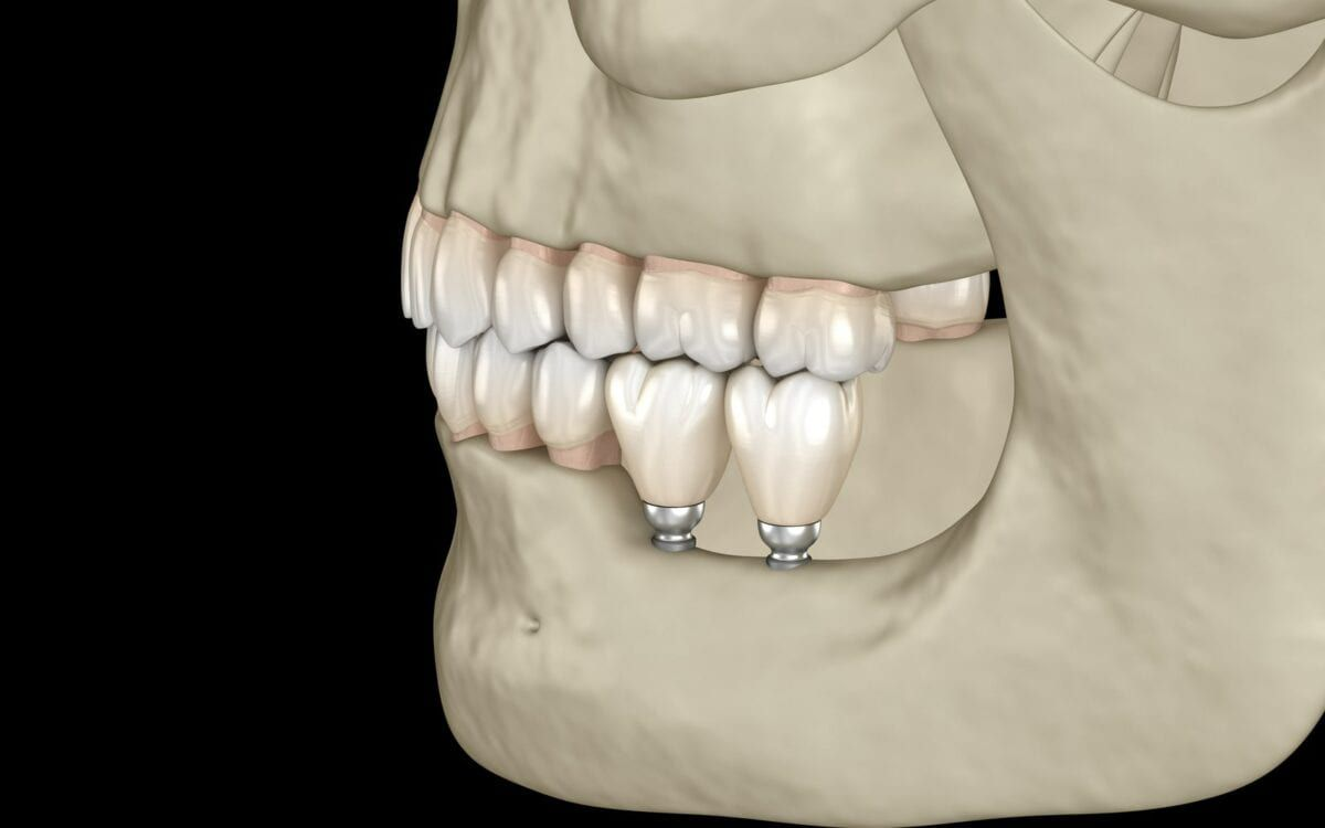 Mini-Implants in a Rendered Jaw